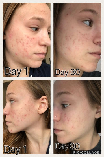Acne Month 1
