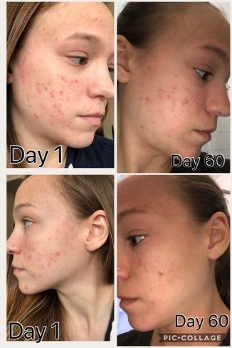 acne 2 months